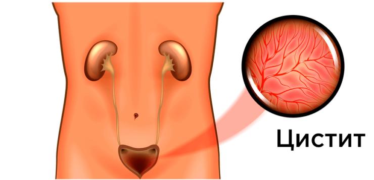 Передается ли цистит половым путем, или когда цистит заразен для полового партнера?