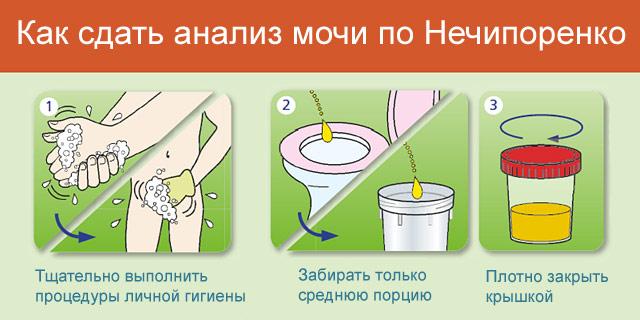 Анализ мочи по Нечипоренко: что показывает тест, норма, как собирать мочу